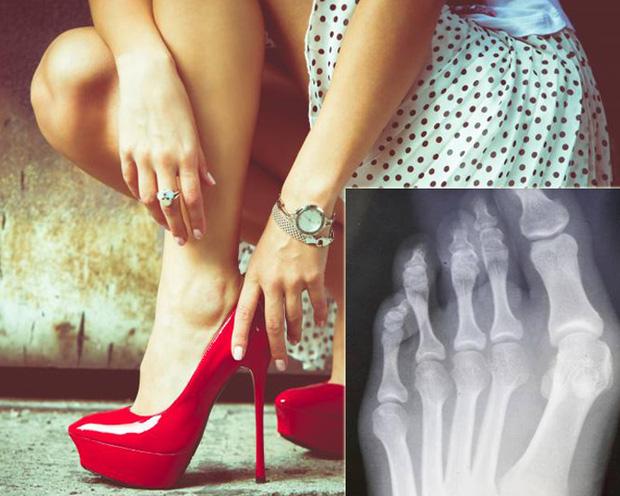 Nguy cơ hỏng cả chân vì đi giày cao gót nhiều mà không biết cách xử lý - Ảnh 2.