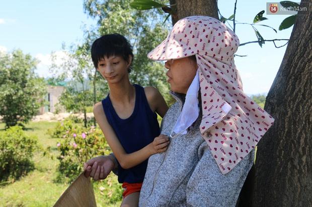 Cuộc sống cùng cực của cậu bé người khỉ 14 tuổi nhưng chỉ cao 0,8 mét, nặng 7kg ở Huế - Ảnh 4.