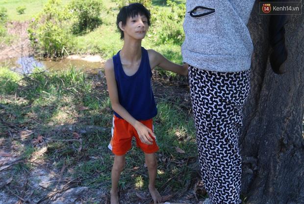 Cuộc sống cùng cực của cậu bé người khỉ 14 tuổi nhưng chỉ cao 0,8 mét, nặng 7kg ở Huế - Ảnh 1.