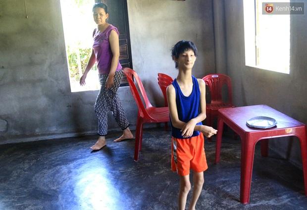 Cuộc sống cùng cực của cậu bé người khỉ 14 tuổi nhưng chỉ cao 0,8 mét, nặng 7kg ở Huế - Ảnh 6.