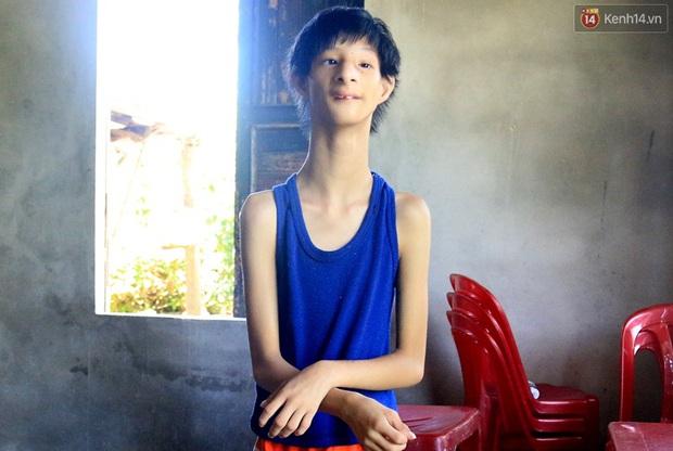 Cuộc sống cùng cực của cậu bé người khỉ 14 tuổi nhưng chỉ cao 0,8 mét, nặng 7kg ở Huế - Ảnh 9.