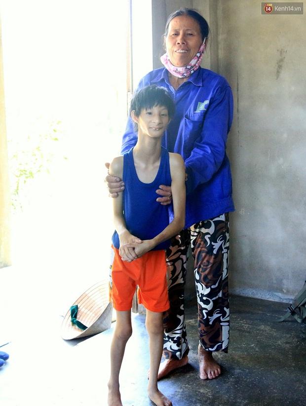 Cuộc sống cùng cực của cậu bé người khỉ 14 tuổi nhưng chỉ cao 0,8 mét, nặng 7kg ở Huế - Ảnh 11.