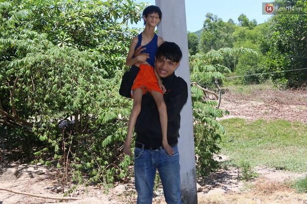 Cuộc sống cùng cực của cậu bé người khỉ 14 tuổi nhưng chỉ cao 0,8 mét, nặng 7kg ở Huế - Ảnh 3.