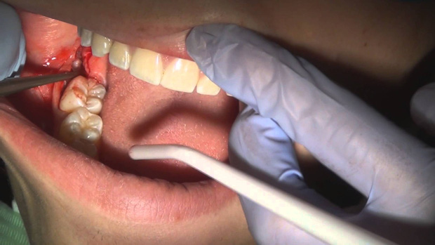 Khi nhổ răng hãy đề phòng những biến chứng gây nguy hiểm tính mạng - Ảnh 1.