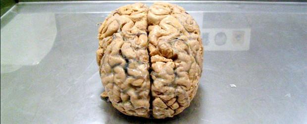 Liệu con người có tồn tại nếu... không có não? - Ảnh 1.