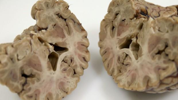 Liệu con người có tồn tại nếu... không có não? - Ảnh 3.
