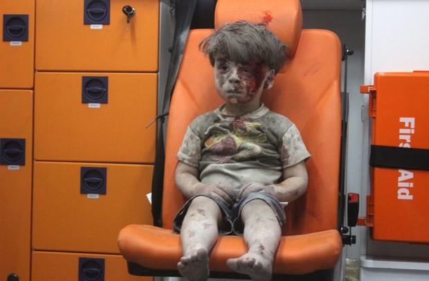 Em bé 5 tuổi bị không kích: Khi ánh mắt lạnh lẽo và dửng dưng trở thành biểu tượng chiến tranh - Ảnh 2.