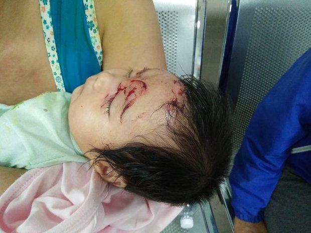 Bé 2 tháng tuổi bị khỉ vào nhà cào rách mặt, định bế đi - Ảnh 1.