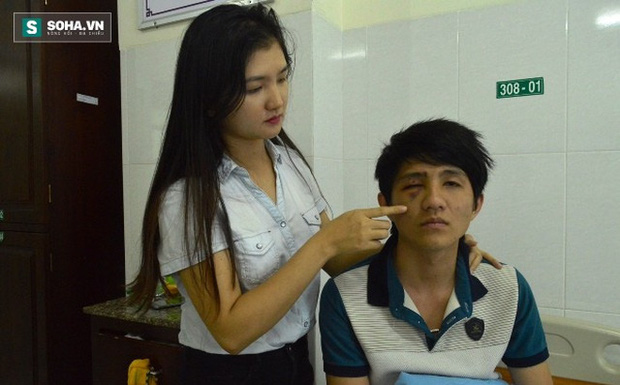 Thanh niên tự đập mặt vào gậy CSGT khiến hốc mắt bị lún - Ảnh 1.