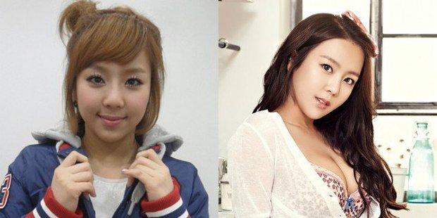 Những người đẹp Hàn thẩm mỹ thành công nhất và họ đã dũng cảm thừa nhận - Ảnh 4.