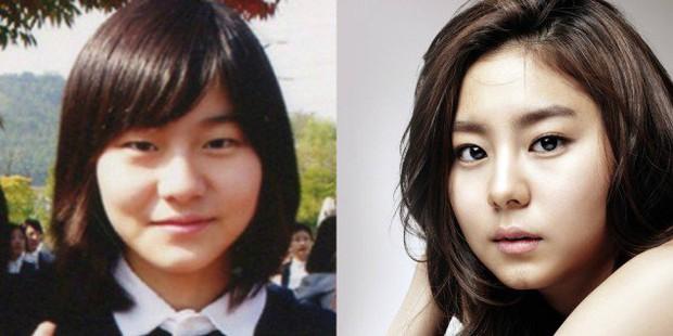 Những người đẹp Hàn thẩm mỹ thành công nhất và họ đã dũng cảm thừa nhận - Ảnh 3.