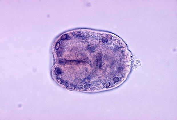 8 loại ký sinh trùng có nguy cơ lẩn trốn trong thức ăn bạn ăn hàng ngày - Ảnh 3.