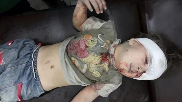 Em bé 5 tuổi bị không kích: Khi ánh mắt lạnh lẽo và dửng dưng trở thành biểu tượng chiến tranh - Ảnh 6.