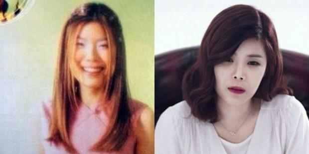 Những người đẹp Hàn thẩm mỹ thành công nhất và họ đã dũng cảm thừa nhận - Ảnh 8.