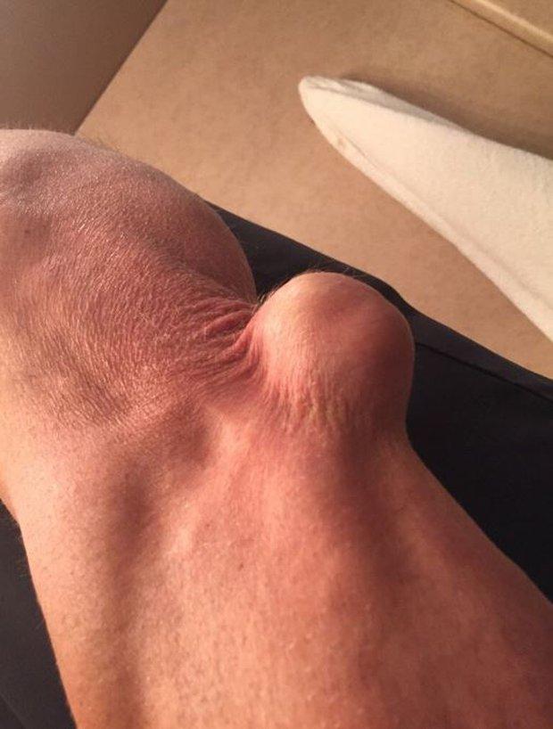 Rùng mình với chấn thương khuỷu tay của huyền thoại làng vật biểu diễn - Ảnh 2.