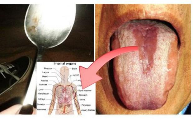 Cách phát hiện nội tạng có đang bị nhiễm độc hay không chỉ bằng 1 chiếc thìa - Ảnh 1.