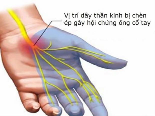 Ngồi máy tính nhiều coi chừng bị hội chứng ống cổ tay lúc nào không hay - Ảnh 2.