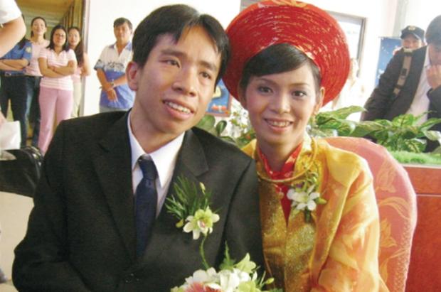Người Việt đầu tiên bị dính liền cơ thể trở thành giáo sư thỉnh giảng tại Nhật Bản - Ảnh 4.