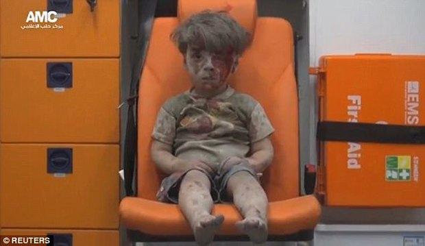Cậu bé Syria mình đầy thương tích và bê bết máu sau một năm giờ thế nào? - Ảnh 2.