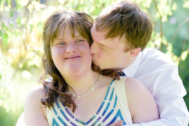 Anh: Bộ ảnh cưới cảm động của cặp đôi mắc hội chứng Down chứng minh tình yêu có thể vượt qua tất cả - Ảnh 2.