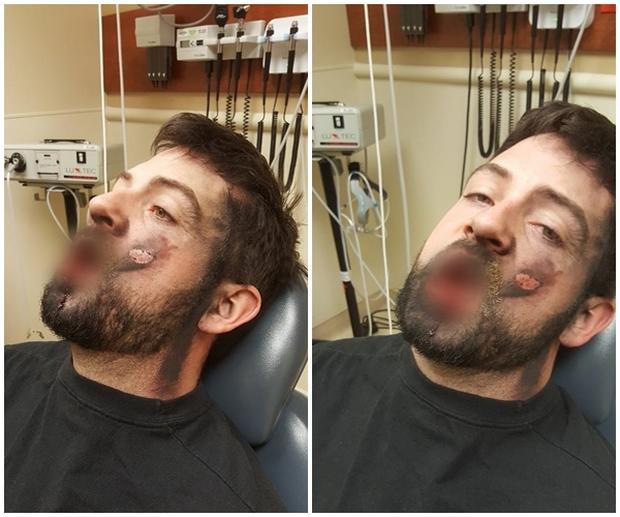 Thuốc lá điện tử phát nổ trong miệng, thanh niên trẻ đi luôn 7 chiếc răng - Ảnh 1.