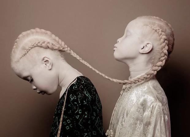 Vẻ đẹp lạ của cặp chị em song sinh bị bạch tạng gây xôn xao ngành công nghiệp thời trang Brazil - Ảnh 1.