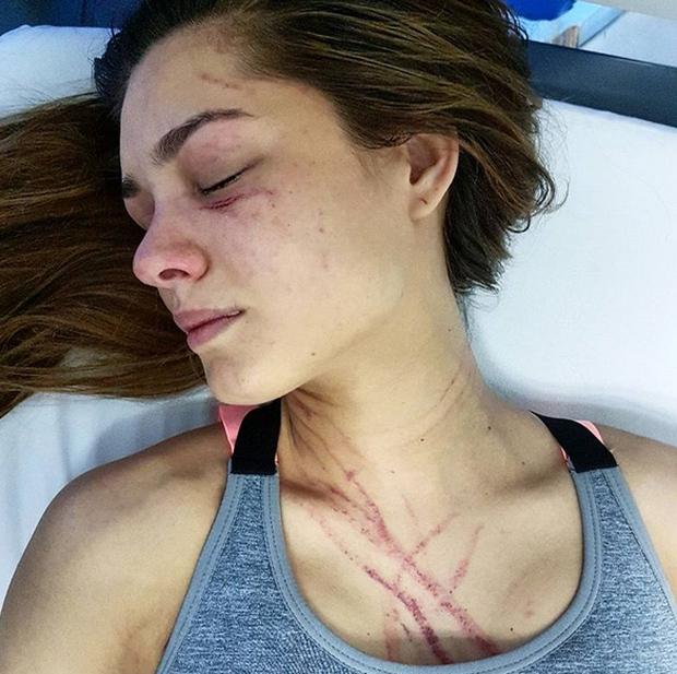 Hoa hậu Venezuela bị nữ ca sĩ đánh trầy mặt, chấn thương khắp người đến mức nhập viện - Ảnh 1.