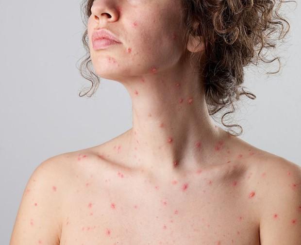 Cứ chủ quan với bệnh thủy đậu mà không ngờ các biến chứng của nó vô cùng nguy hiểm - Ảnh 1.