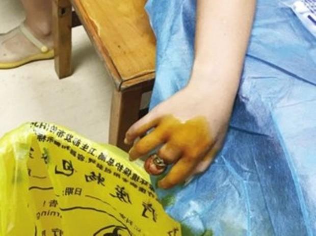 Chỉ vì một chiếc nhẫn rẻ tiền, bé gái này suýt mất cả ngón tay của mình - Ảnh 2.