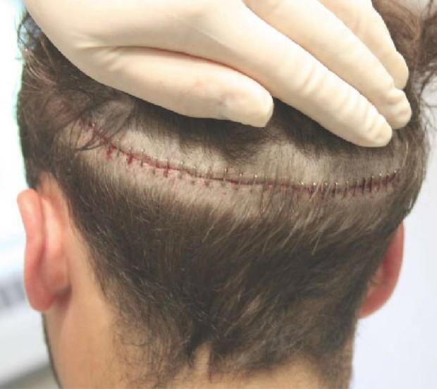 Hóa ra cận cảnh quy trình cấy tóc lại tỉ mỉ và rắc rối thế này - Ảnh 3.