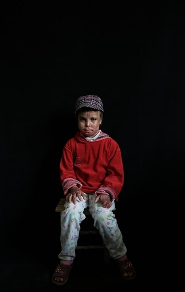 Tình hình Syria: Hình ảnh nạn nhân trong các cuộc tấn công kinh hoàng ở Syria- Ảnh 20.