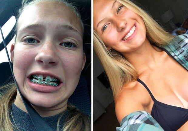 19 khuôn mặt thay đổi ngoạn mục chứng tỏ sức mạnh của niềng răng thật là vi diệu - Ảnh 5.