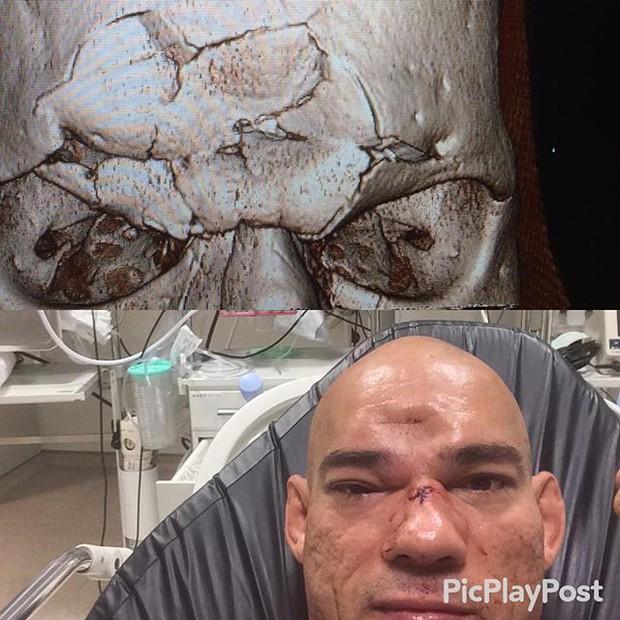 Võ sĩ MMA tung chiêu đẹp mắt, one-hit hạ gục đối thủ - Ảnh 4.