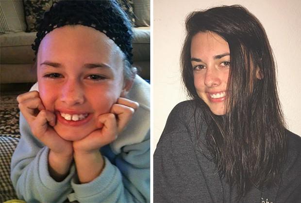 19 khuôn mặt thay đổi ngoạn mục chứng tỏ sức mạnh của niềng răng thật là vi diệu - Ảnh 11.