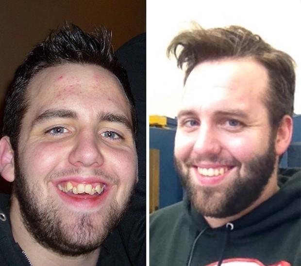 19 khuôn mặt thay đổi ngoạn mục chứng tỏ sức mạnh của niềng răng thật là vi diệu - Ảnh 15.