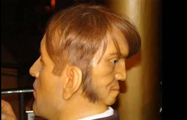 Bí ẩn người đàn ông điển trai nhưng mang 2 gương mặt và sự thật bất ngờ được giải mã - Ảnh 2.