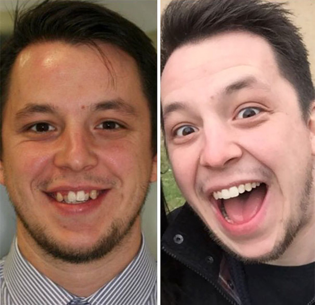 19 khuôn mặt thay đổi ngoạn mục chứng tỏ sức mạnh của niềng răng thật là vi diệu - Ảnh 17.