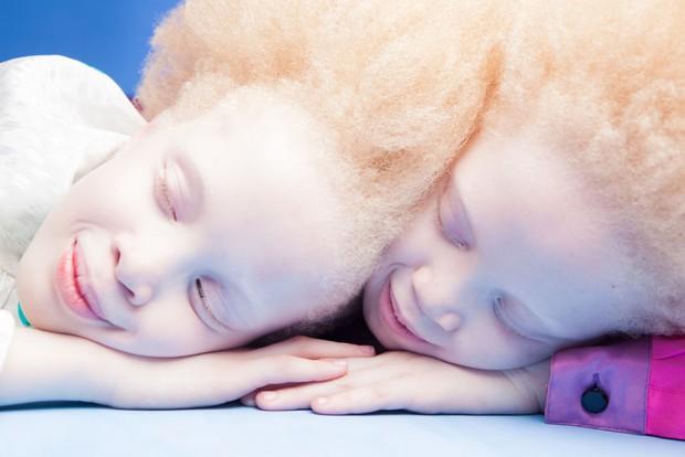 Vẻ đẹp lạ của cặp chị em song sinh bị bạch tạng gây xôn xao ngành công nghiệp thời trang Brazil - Ảnh 4.