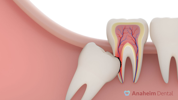 Tìm hiểu các triệu chứng khi mọc răng khôn để có cách đối phó tốt hơn - Ảnh 2.