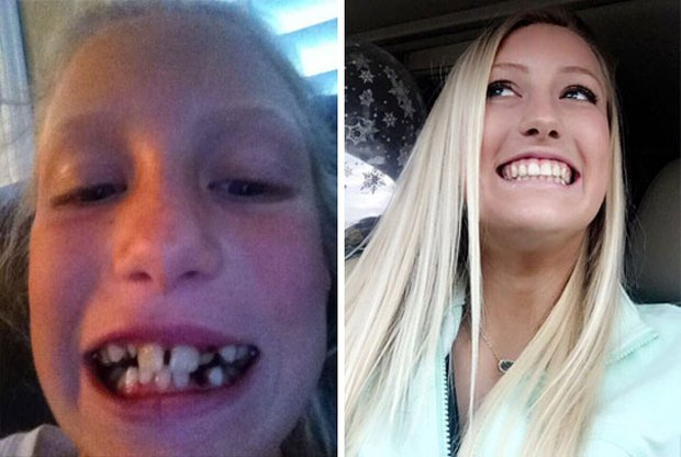 19 khuôn mặt thay đổi ngoạn mục chứng tỏ sức mạnh của niềng răng thật là vi diệu - Ảnh 19.