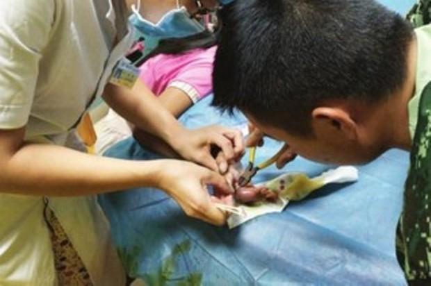 Chỉ vì một chiếc nhẫn rẻ tiền, bé gái này suýt mất cả ngón tay của mình - Ảnh 1.
