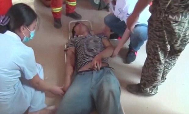 Bị thang máy kẹp nghiến, chàng kĩ sư trẻ tuổi vẫn may mắn sống sót - Ảnh 3.