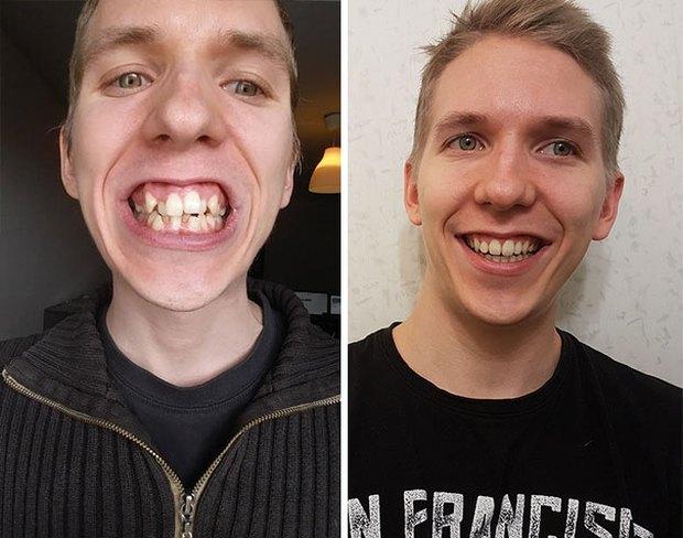 19 khuôn mặt thay đổi ngoạn mục chứng tỏ sức mạnh của niềng răng thật là vi diệu - Ảnh 21.