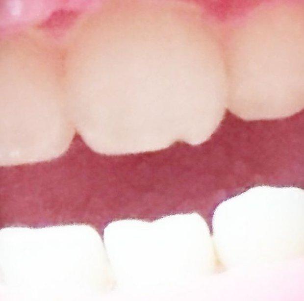 Răng bị mẻ chỉ vì ăn bánh tráng, tưởng chuyện đùa mà lại có thật đấy! - Ảnh 4.