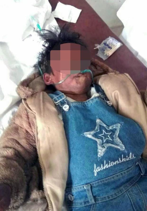 Trung Quốc: 2 đứa trẻ bị bỏ lại trong xe dùng bật lửa thiêu rụi cả chiếc Audi A6 - Ảnh 3.