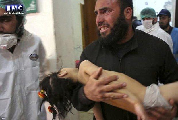 Hình ảnh đau lòng về những đứa trẻ là nạn nhân trong cuộc chiến hóa học tại Syria - Ảnh 4.