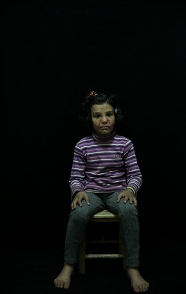 Tình hình Syria: Hình ảnh nạn nhân trong các cuộc tấn công kinh hoàng ở Syria - Ảnh 6.