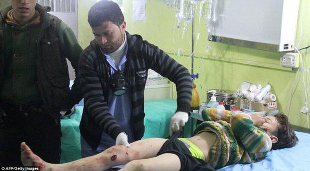 Hình ảnh đau lòng về những đứa trẻ là nạn nhân trong cuộc chiến hóa học tại Syria - Ảnh 5.