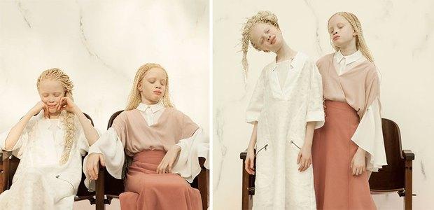 Vẻ đẹp lạ của cặp chị em song sinh bị bạch tạng gây xôn xao ngành công nghiệp thời trang Brazil - Ảnh 3.