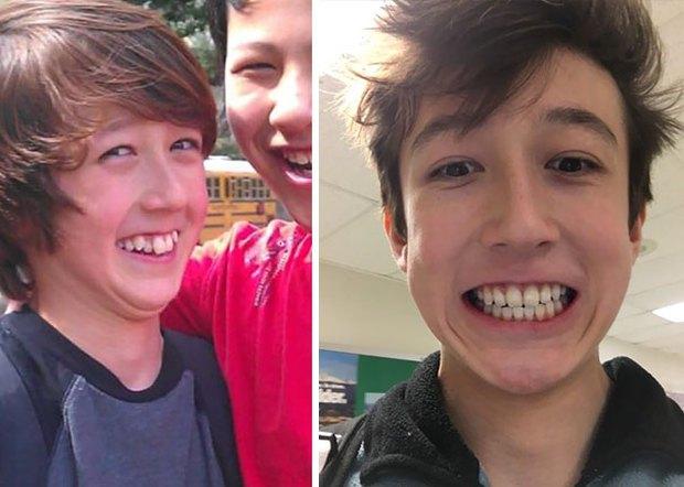 19 khuôn mặt thay đổi ngoạn mục chứng tỏ sức mạnh của niềng răng thật là vi diệu - Ảnh 27.